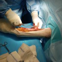 servizio-chirurgia-02